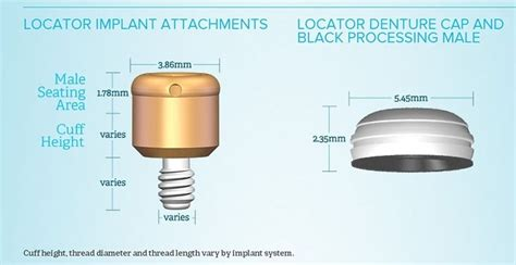 LOCATOR Implant Attachment System   Zest Dental Solutions