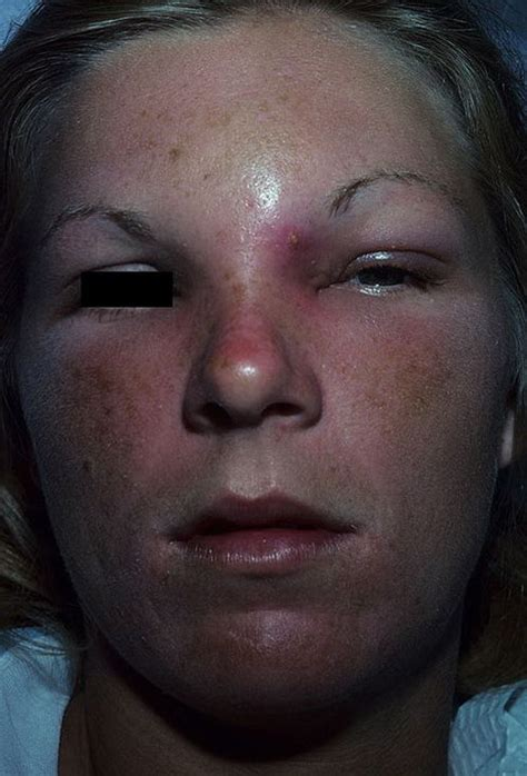 Boil Inflammation Pictures – 30 Photos & Images