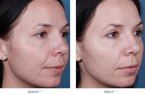 obagi-blue-peel-side-woman-before-after - Bella Body
