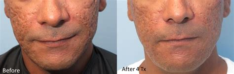 Genius® Microneedling with RF Before & After Photos