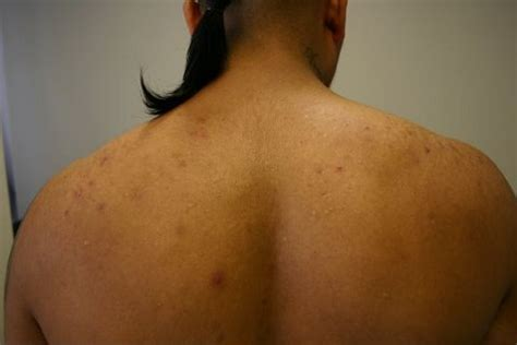 The Acne Practice (Back Acne 1) - YouTube