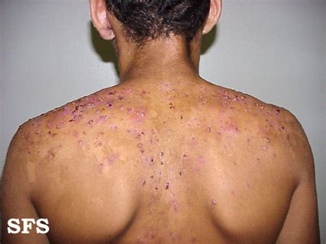 Forehead Rash (Skin Problems) Causes and Pictures
