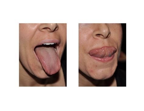Case Study - Tongue Tie Release in Adults - Explore