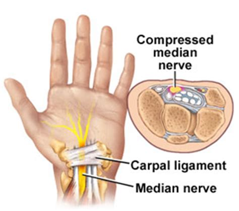 Carpal Tunnel Syndrom   ML massage therapy in Geraldton